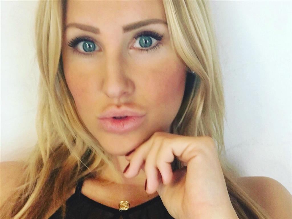 dicke lippen in münchen